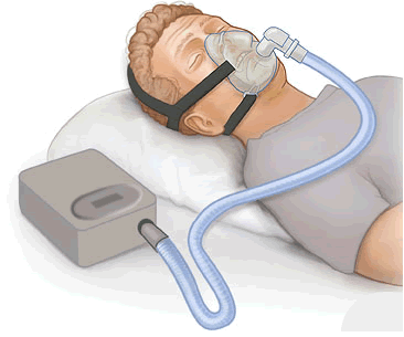 donate used cpap machine